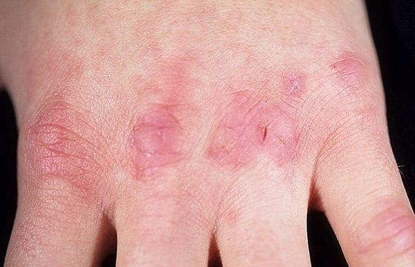 руки кожа трещины